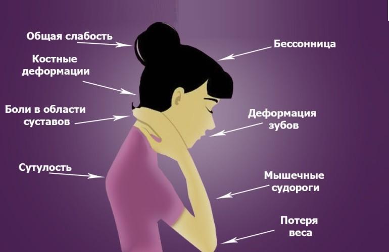 Витамин Д3: симптомы нехватки