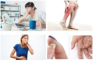 Дефицита биотина симптомы