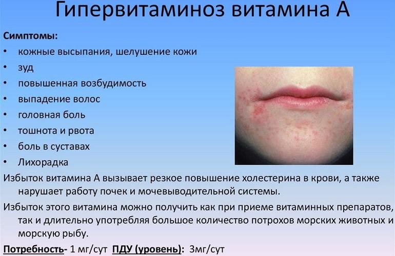 Симптоматика гипервитаминоза