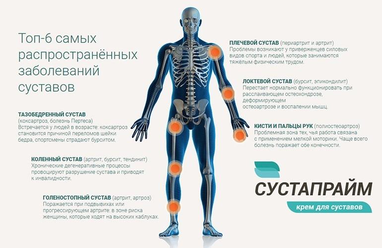 Болят колени витамины для суставов thumbnail