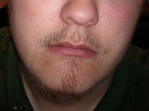 Медленный рост бороды