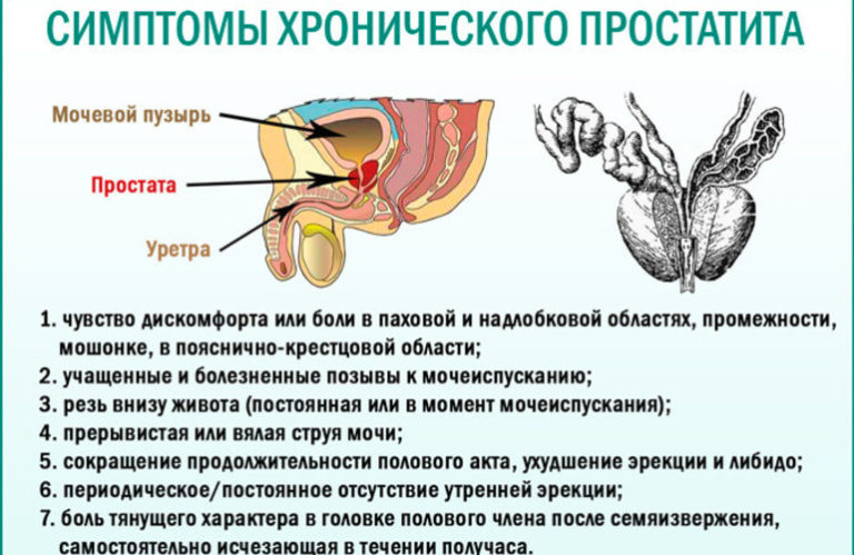 Признаки вялотекущего простатита простатит лежу в больнице