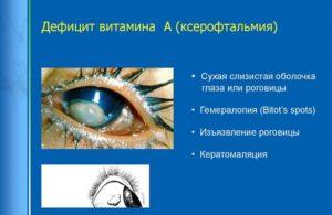 Витамины для зрительного нерва